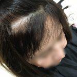 [縮毛矯正?] お客様「私の髪直りますか?」→「良くしていきましょう♪」